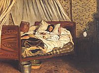 The Improvised Field-Hospital (Monet), 1865, bazille